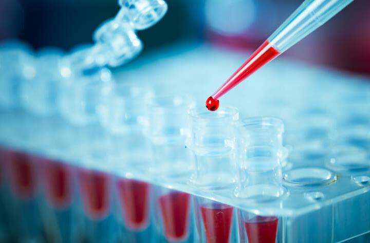 Test del sangue sperimentale identifica cinque tumori con 4 anni di anticipo